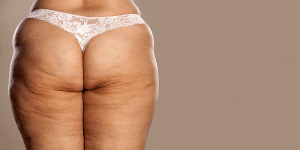 Jak powstaje cellulit u mężczyzn i kobiet